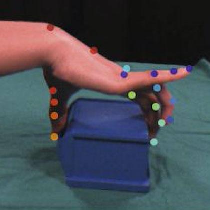 Fingergelenke einer Hand beim Greifen eines Objektes/ Finger joints of a hand when gripping an object