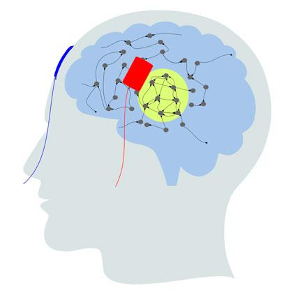 Graphische Darstellung einer transkraniellen Hirnstimulation/ Illustration of a transcranial brain stimulation