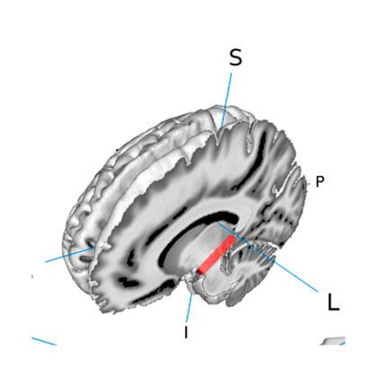 Darstellung des medialen Kniehöckers im Gehirn von menschlichen Testpersonen /Visualization of the medial geniculate body (MGB) in the brain of human test persons